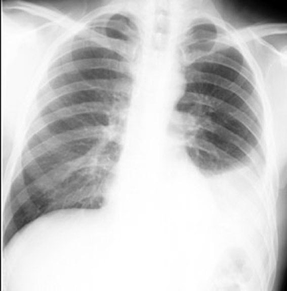 Small Pleural Effusion Lung Cancer X-ray