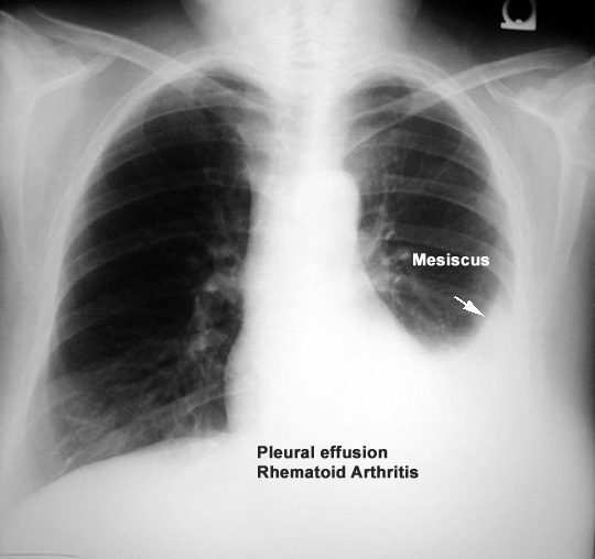 prednisone and pleural effusion