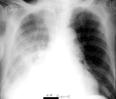 Pleural Effusion / Supine and upright