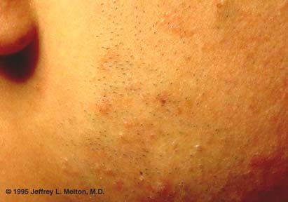 Flat Warts Of The Face