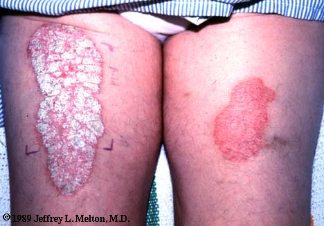 psor3 How To Fix Psoriasis