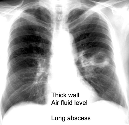 Cavity in Chest x-ray / Radiology