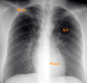 chest x-ray, youshould systematically evaluate mediastinum, lung ...