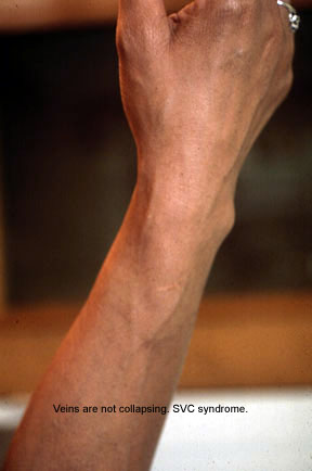 distended arm veins