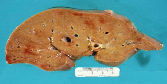 effect of crab fat on human Trans fats have received a lot of attention due to their negative effects on health in fact, many places in the united states, such as new york city, philadelphia and california, have pushed to decrease or remove the use of trans fats in schools, restaurants and food facilities.