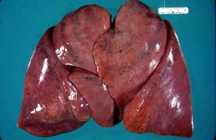 Adult Respiratory Distress Syndrome Ards