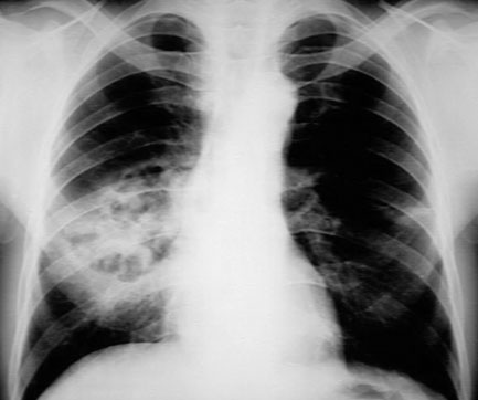 Oropharyngeal cancer xray