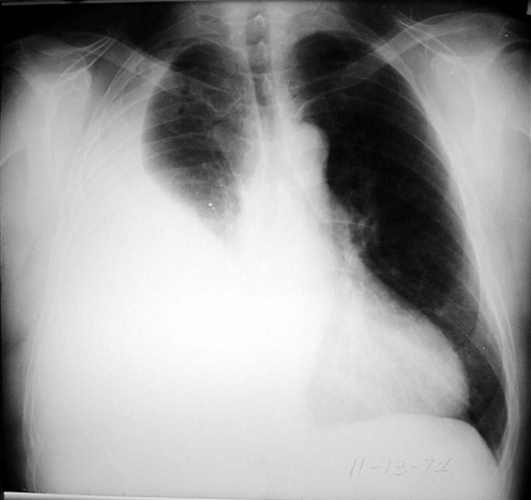 What is the significance of position and pleural effusion?