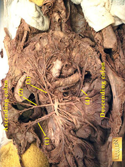 Gi and abdomen radiologic anatomy dissection showing vessels supplying colon ccuart Choice Image