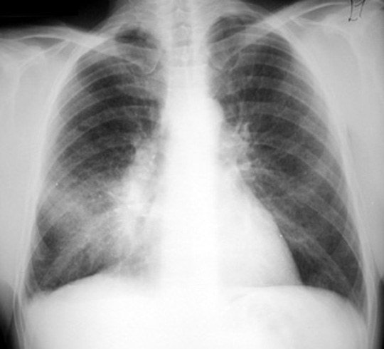 which revealed an acute pneumonia in the right middle lobe, the patient  was treated with antibiotics as an outpatient  during the 10 days of  treatment