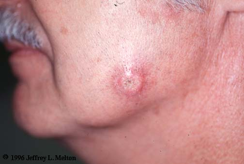squamous cell carcinoma of the cheek, Human body