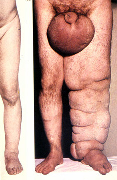 When edema is noted, describe whether it is unilateral or