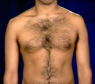 The Neck And Anterior Chest Wall Suggestive Of Thoracic Inlet Syndr ...