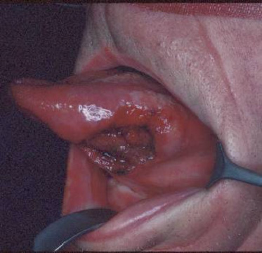 Herpes On Tongue