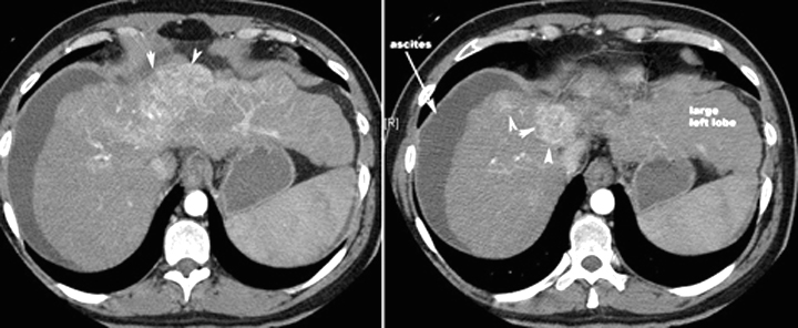 What are the anticipated imaging findings of hepatoma?