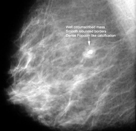 Calcification in breasts