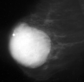 What are the common clinical problems presenting as breast