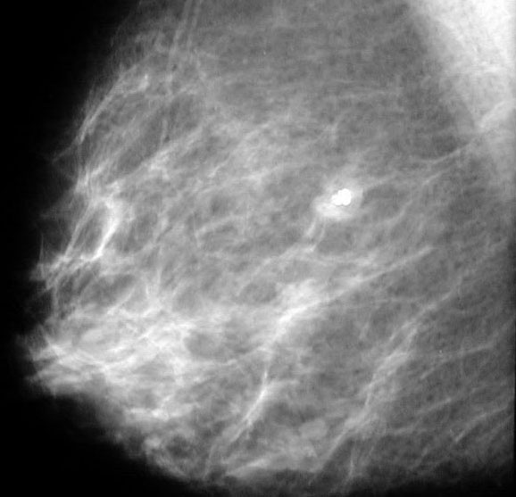 The breast lump calcification you the