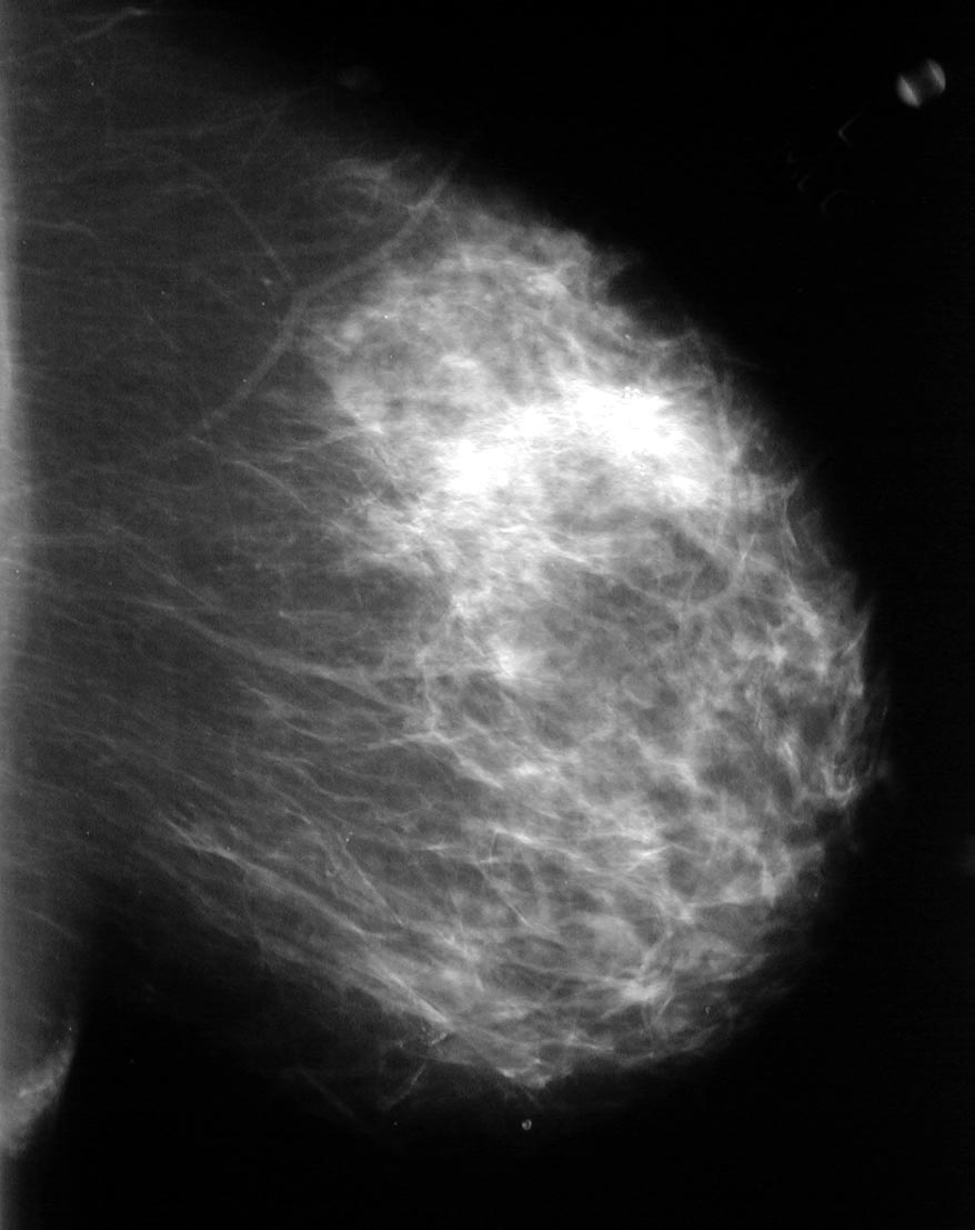 Has the appearance of a dense popcorn like calcification on mammogram